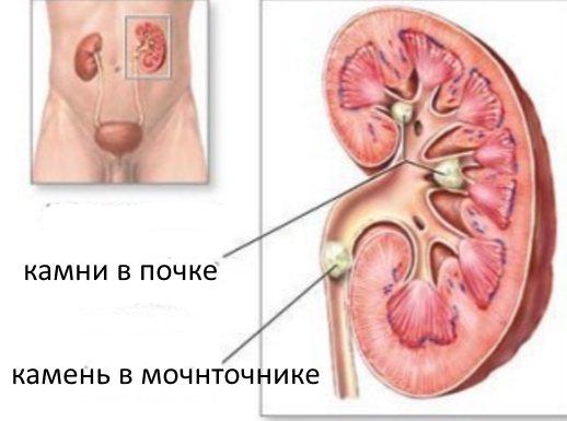 Ниркові кольки: симптоми у чоловіків, їх лікування